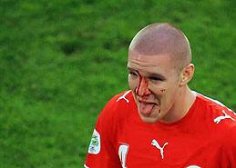 森德罗斯用流血换来进球!