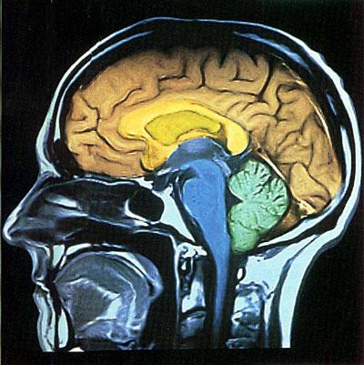 科技时代_人体大脑十大未解之谜:人类为什么会做梦