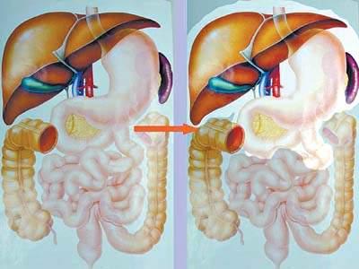腹部内部结构图