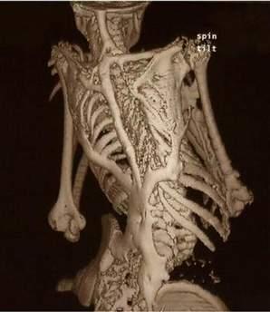 科学家发现会诱发身体形成第二个骨架的基因
