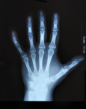 科学家研制有感觉能力的仿生假肢(图)