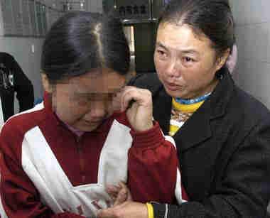 15岁少女先天无肛门 医生决定从其大腿上割肉再造