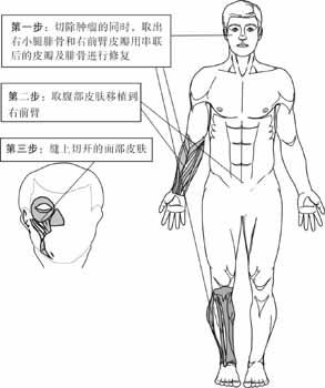 取下腿骨臂肉 重塑半边脸(组图)图片