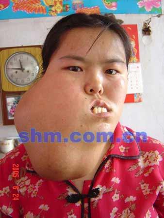 山东一21岁姑娘9岁起得怪病右脸肿如西瓜(组图)