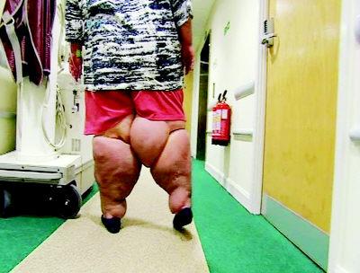 英国最胖牛肉救命减肥(男人)吃只组图减肥图片