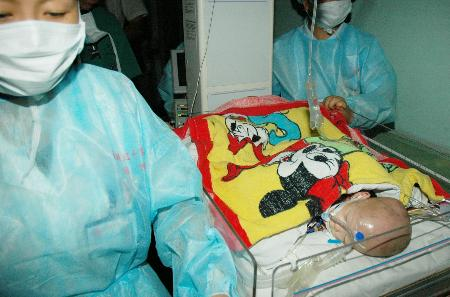 台州11个月连体女婴13小时分离手术成功(组图)