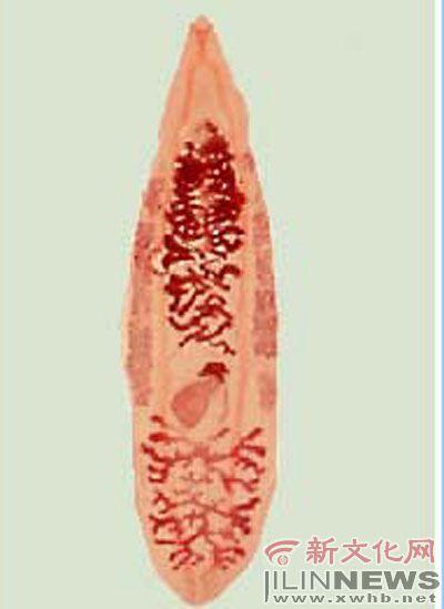 华枝睾吸虫(肝吸虫)