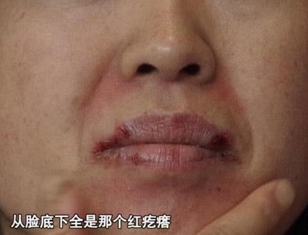 广告误导爱美女士高价化妆品换来满脸斑(图)