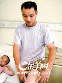 贫寒父亲四次割皮给烧伤儿子做移植(图)_新闻