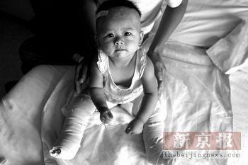 烫伤女婴被弃医院一月伤愈后父母仍未现身