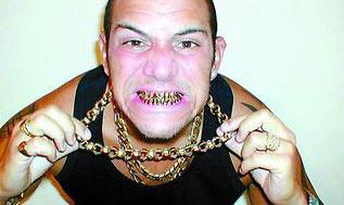男子花1万英镑装满口金牙后多次遭劫(图)
