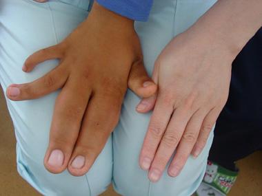 10岁男童患巨指症手指肥大如香蕉(图)