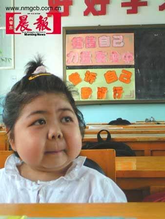 11岁女孩被怪病纠缠十年至今无法确诊(组图)