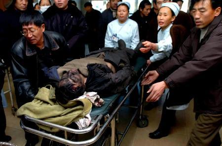 图文:受伤矿工被送往医院急救室抢救
