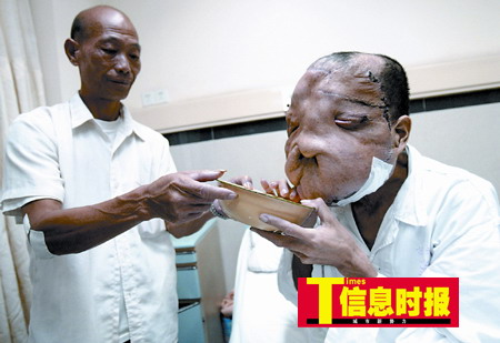 象面人第一次手术割掉2.1斤肿瘤(组图)