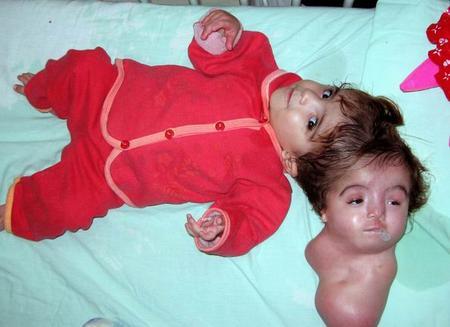 组图:埃及双头畸型女婴做手术切除多余头颅