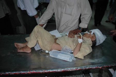 图文:一名受伤小男孩在巴基斯坦医学院接受治疗