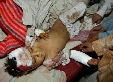 图文:地震中受伤的巴基斯坦小孩在接受治疗