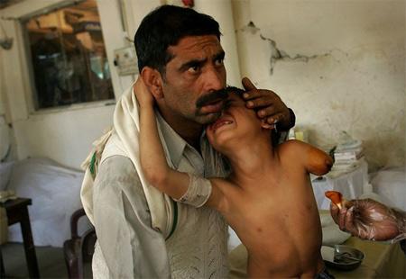 图文:巴基斯坦男孩地震中受伤被截肢