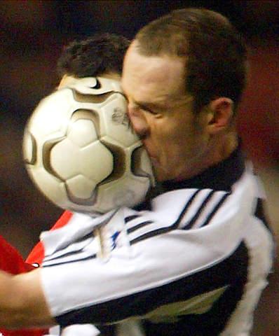 """图文-[英超]曼联0-0纽卡脸被球""""闷""""的严重变形"""