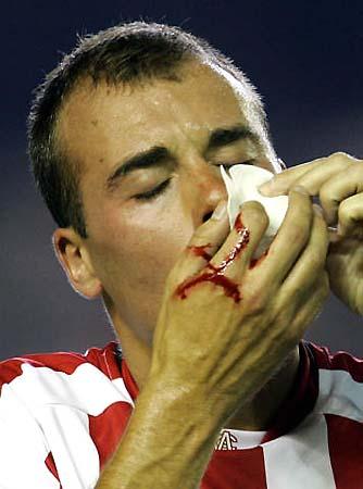 图文-毕尔巴鄂竞技VS皇家贝蒂斯耶斯特鼻部出血