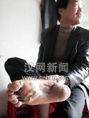色情按摸小�_邓的双脚脚底长着几块黄色半透明的硬茧,大的如乒乓球,小的似拇指头.